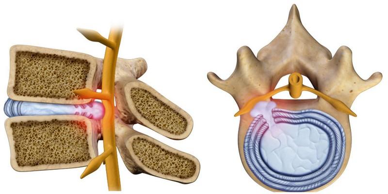 Протрузия диска L3-L4 - особенности поясничного отдела позвоночника, как образуется, симптомы, лечение.