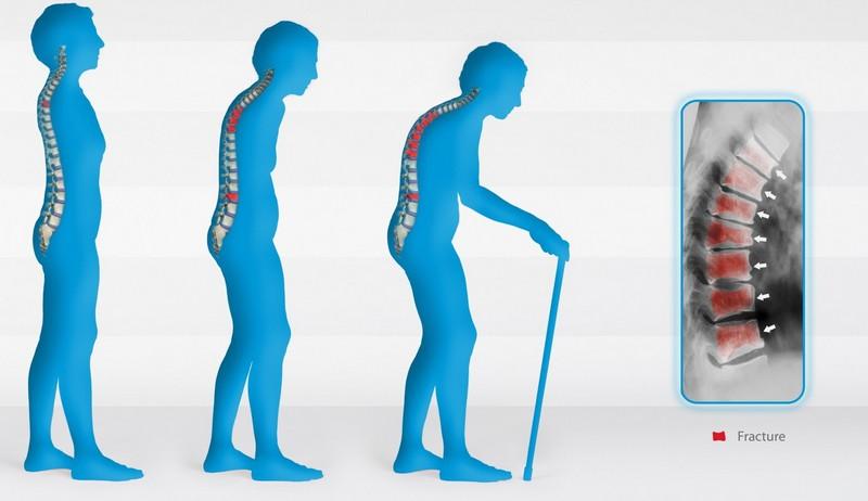Симптомы и стадии развития горба на спине