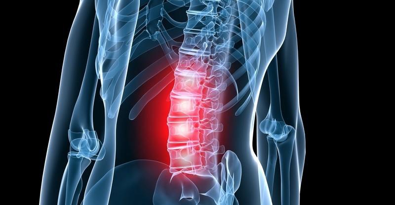 поясничный остеохохндроз