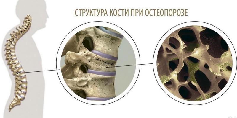 остеопения поясничного отдела позвоночника лечение