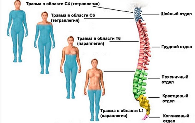 Инфекционное воспаление позвоночника