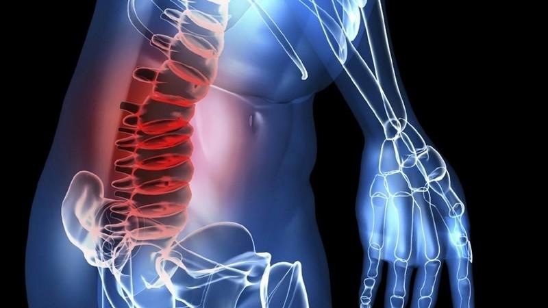 народные методы устранения боли при защемлении нерва