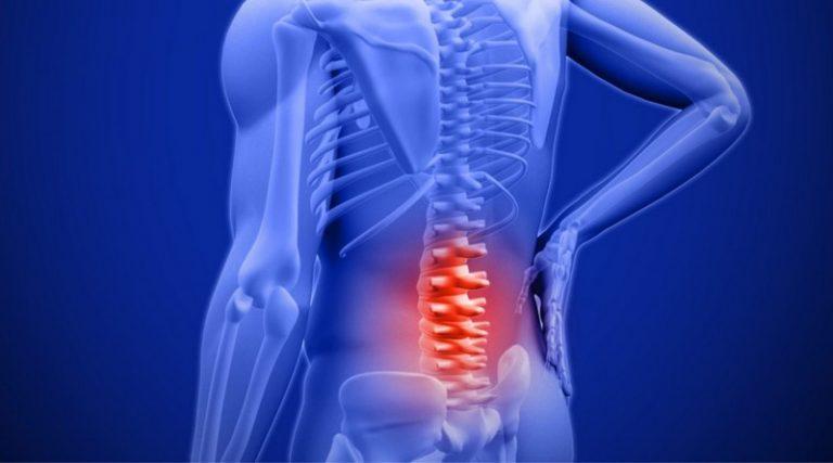 Симптомы воспаления мышцы на позвоночнике