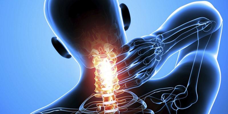 Артрит шейного отдела позвоночника симптомы