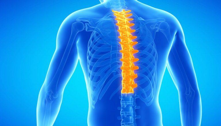 Видео лечение остеохондроза грудного отдела позвоночника