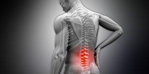 Что такое субхондральный склероз позвоночника