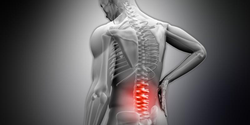 Субхондральный склероз шейного отдела позвоночника