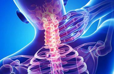 Продуло шею - как лечить в домашних условиях быстро Мази и отзывы