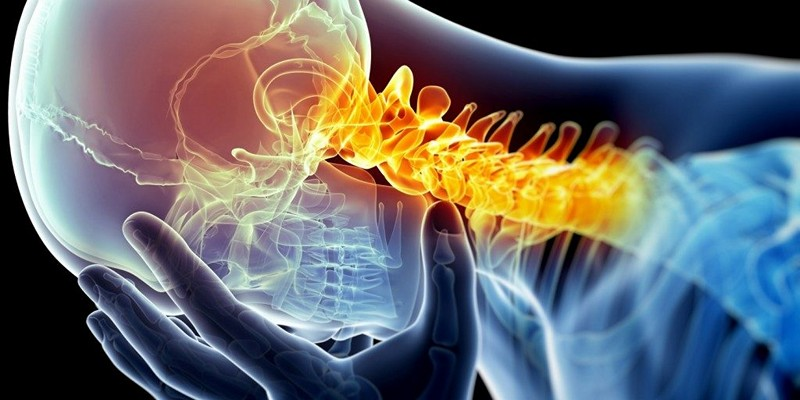 Остеофиты шейного отдела позвоночника