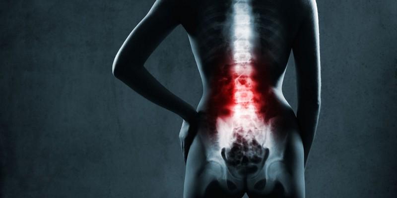 Артрит позвоночника симптомы и лечение