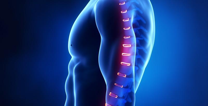 разновидности болей в грудном отделе позвоночника