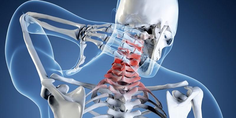 Невралгия позвоночника шейного и затылочного отдела