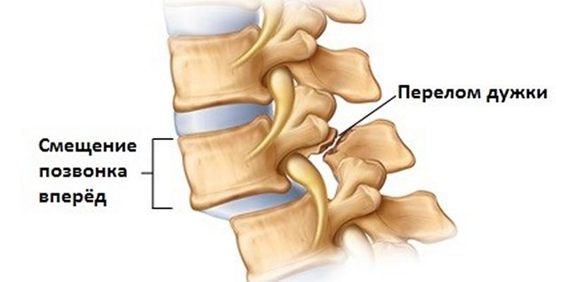 смещение шейного отдела позвонков симптомы лечение