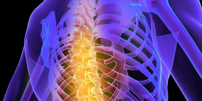 Заболевания грудного отдела позвоночника