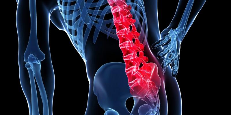 Как лечить хондроз спины?