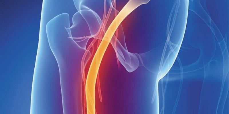 Как делать уколы при воспалении седалищного нерва?