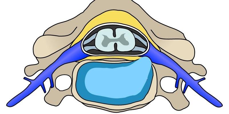 Экструзия дисков позвоночника, что это такое, диагностика лечение