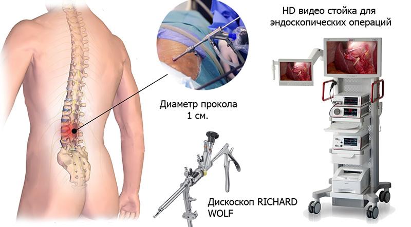Где сделать операцию при грыже позвоночника