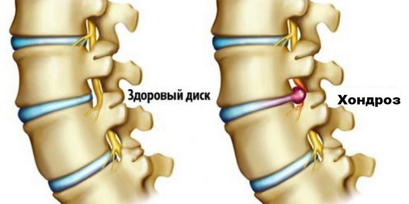 Лечение хондроза шейно грудного отдела позвоночника