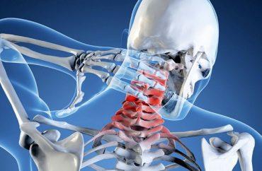Почему появляется шум в голове при шейном остеохондрозе и как лечить симптом
