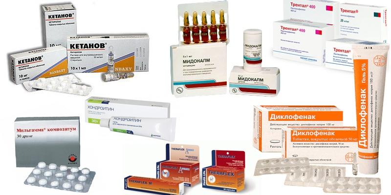 Препараты для лечения остеохондроза с болевым синдромом